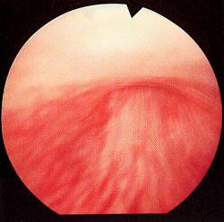 того, чтобы фото мужских растянутых сфинктеров синтетические материалы лучше